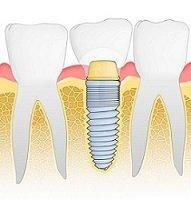 Eingesetztes Zahnimplantat