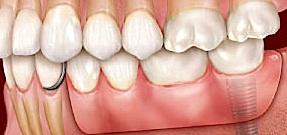 Bei einer implantatbasierten Freiendbrücke werden angrenzende Zähne nicht geschädigt. Außerdem entwickelt sich der Knochen nicht zurück.