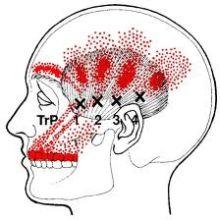 Zahnschmerzen Projektion