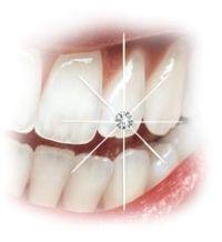 Es gibt die verschiedensten Materialien für Zahnschmuck. Neben Gold und Platin sind auch Edelsteine sehr beliebt.