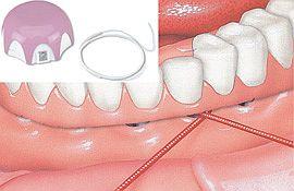 Wer Zahnersatz oder eine Spange trägt, braucht unter Umständen besondere Zahnseide zur Reinigung. Die Technik erklärt der Zahnarzt.