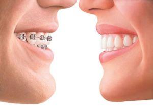 Auch bei Erwachsenen kann eine Zahnspange schon für eine verbesserte Zahnästhetik sorgen. Neue Modelle sind fast unsichtbar.