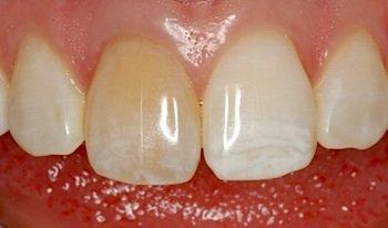 Die Ursachen für Zahnverfärbungen können unterschiedlich sein, man unterscheidet inneren von äußeren Verfärbungen.