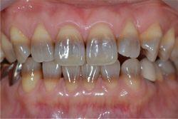 Zahnverfärbung durch Tetracyline