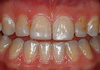 Zahnverfärbungen und Zahnfüllungen