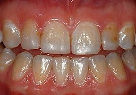 Zahnverfärbungen und alte Zahnfüllungen