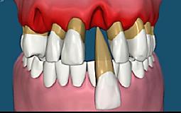 Geht die Entzündung auf den gesamten Zahnhalteapparat über, kann dies zum Verlust der Zähne führen.