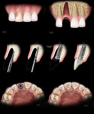 Bei einer Sofortimplantation wird direkt nach der Zahnextraktion das Implantat in den Kiefer gebracht.