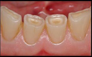 Abnutzungserscheinungen wie Abrasionen durch Zähneknirschen oder der Abbau von Zahnschmelz durch sehr säurehaltige Ernährung zeigen sich meist im späteren Lebensverlauf.
