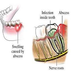 Entzündung am Weisheitszahn durch Zahntasche