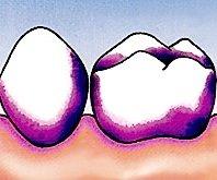 Wenn der Zahnarzt den Zahnbelag einfärbt, wird einem das erste Mal so richtig bewusst, was da noch nach dem Putzen so übrig bleibt.