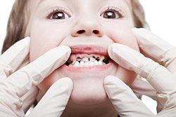Die Angst vor dem Zahnarzt entsteht häufig durch schlechte Erfahrungen, die oft schon in der Kindheit durch einen ruppigen Zahnarzt gemacht wurden.