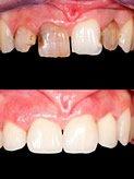 Zahnsanierung sind auch bei Patienten mit Dentalphobie möglich