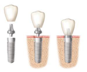 Die beim Implantat in den Kiefer eingebrachte Schraube muss zunächst sicher im Knochen eingewachsen sein, bevor es belastet werden kann.