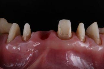 Tun zahnfüllung rausgefallen was Zahnfüllung fällt