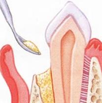 Auffüllung einer Knochentasche mit Knochenersatzmaterial
