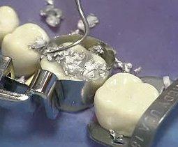 Ausarbeitung einer Zahnfüllung