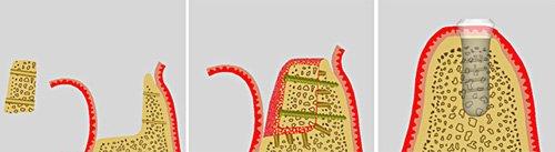 Sollte von dem Zahnimplantat der Knochen aufgebaut werden müssen, entscheidet sich der Zahnarzt zum Beispiel für das autogene Verfahren zum Knochenaufbau.