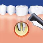 Zahnbehandlung mit dem Kaltlichtstrahl