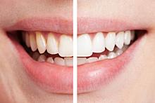 Im Gegensatz zu schwarzer Zahnpasta funktioniert Whitening Zahncreme über abschleifende Partikel, die auch den Zahnschmelz schädigen lönnen.