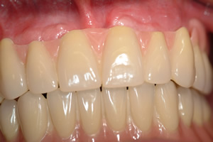 Zahnersatz ohne gaumenplatte herausnehmbarer Herausnehmbarer Zahnersatz
