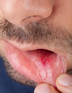 Chlamydia pneumoniae IgG erhht, chronHalskratzen