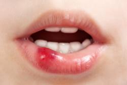 Blasen im Mund sind meist harmlose Veränderungen an der Schleimhaut, wir erklären Ihnen, wo sie herkommen und was dagegen getan werden kann.