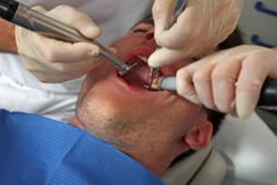 Bohren beim Zahnarzt