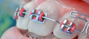 Der Kieferchirurg begradigt mit einer Zahnspange schief stehende Zähne und kann auf diesem Weg u.U. einen Sprechfehler beheben.
