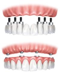 Implantatgetragener Zahnersatz im Oberkiefer