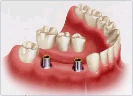 Implantatbrücke im Unterkiefer