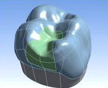 CAD-CAM Planung Inlay