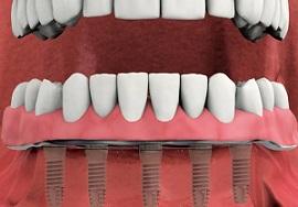 Die Versorgung des zahnlosen Unterkiefers mit rein schleimhautgetragenen Zahnprothesen ist hinsichtlich des subjektiven Haltes nur sehr selten in einer für den Patienten akzeptablen Art zu realisieren.