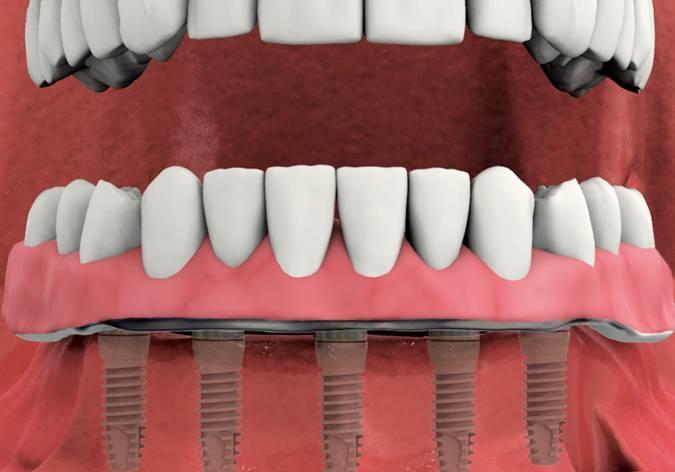 Schnell Implantate sind Zahnimplantate, die in nur einer Sitzung inklusive Aufbau und Zahnersatz eingebracht werden.