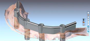 Natürlich hat auch die steggetragene Prothese auf Implantaten neben den Vorteilen ein paar Nachteile. Sie werden aber sehen, dass die positiven Aspekte überwiegen.