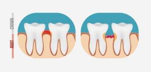 Eine langwierige Parodontoseerkrankung führt zu Verlust von Knochenmaterial im Kiefer.