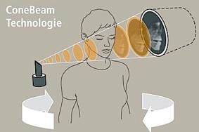 Mit dem Cone Beam Verfahren werden 200 aufeinander folgende Bilder des Schädels bzw. Kiefers erstellt.