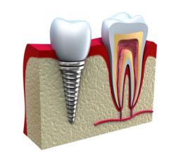 Dentalimplantation