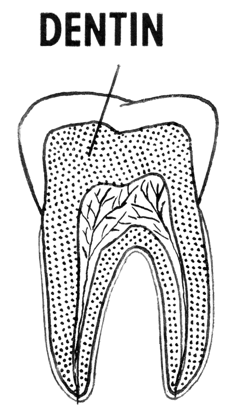 Auch das Dentin kann durch Nichtbehandlung angegriffen werden.