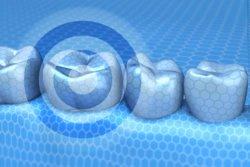 Auf digtalem Wege werden die Zahnbehandlungen simuliert, um dann einen punktgenauen Behandlungserfolg zu erzielen.