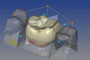 Zahnkrone aus Keramik mit CAD/CAM