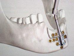 Durch das Auseinanderziehen des Kieferknochens, wird der Knochenwachstum angeregt. Das wird als Distraktion bezeichnet.