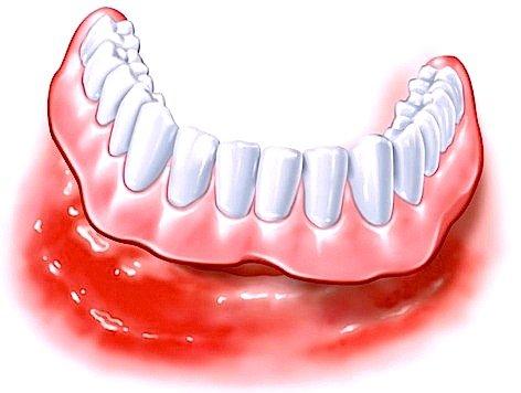 Schlecht sitzende Zahnprothesen, die quälende Druckstellen verursachen, können Schmerzen verursachen und sollten umgehend angepasst werden.