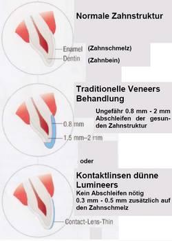 Während für Veneers die Zähne beschliffen werden müssen, können Lumineers ohne diese Prozedur aufgebracht werden.