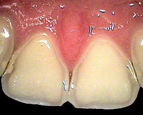 Der ätzende Magensaft greift Zahnfleisch und Gebiss an, führt zu Entzündungen und Erosion von Zahnschmelz