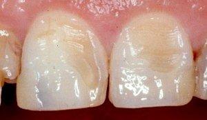 Erosion der Zahnoberfläche