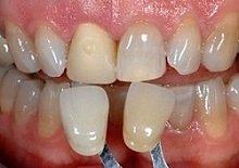 Mit Veneers können leicht schiefe Zähne oder Zahnverfärbungen ausgeglichen werden.