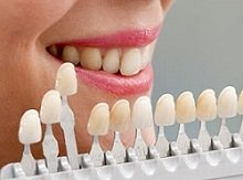 Farbbestimmung der Zähne
