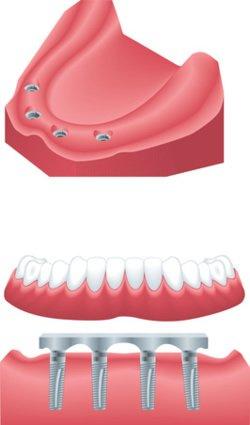 Beim All on Four Konzept wird innerhalb von 24 Stunden der Patient mit Implantaten und Zahnersatz versorgt.