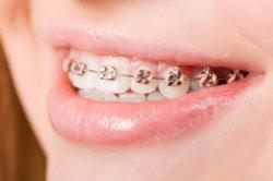 Eine Feste Zahnspange